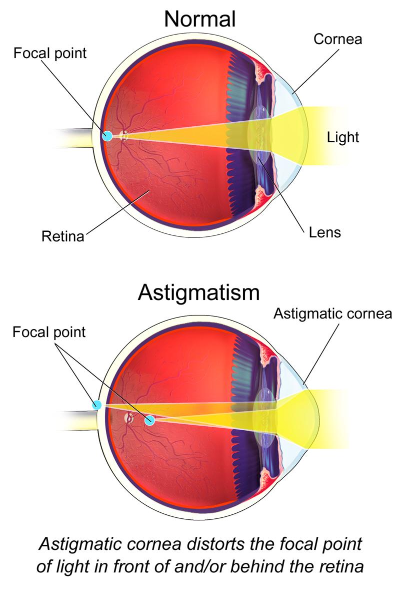 Astigmatism (Eye) - Astigmatism - Wikipedia   Genius!   Pinterest ...