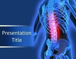 These PowerPoint Templates Represent Seriousness of Back Pain Problem- https://goo.gl/12qKRx