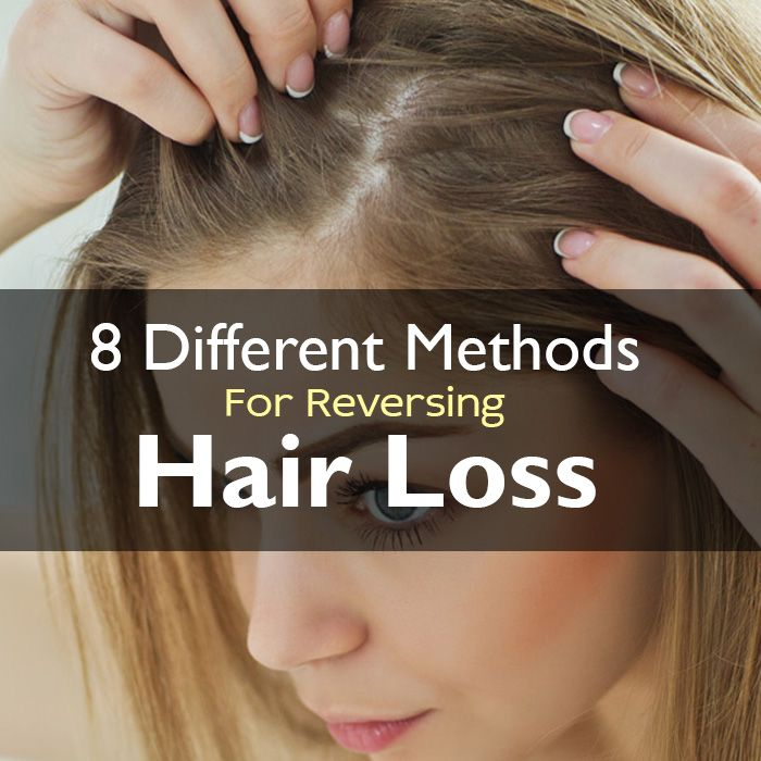 Hair loss is a universal problem that plagues men and women alike. The most common type of hair loss is a condition called Androgenetic Alopecia. This type of hair loss can affect both men and wome…