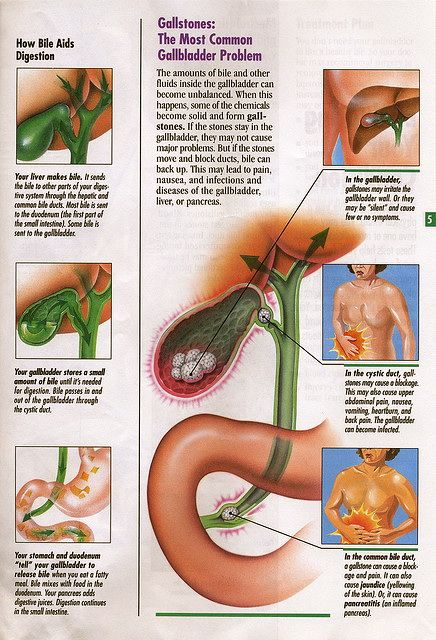 Gallstones prevent bile from reaching your intestines and in turn ...
