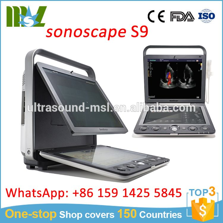 China Portable Ultrasound Machine Price Sonoscape Ultrasound Ecografo Medical Equipment Ultrasound Manufacturing