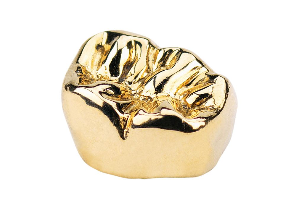 Buy Dental Gold Sell Dental Gold has all of the information