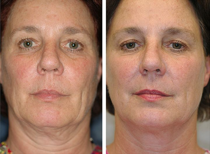 Thermage Before And After Bonnie Straka Md Sagging Skin Skin