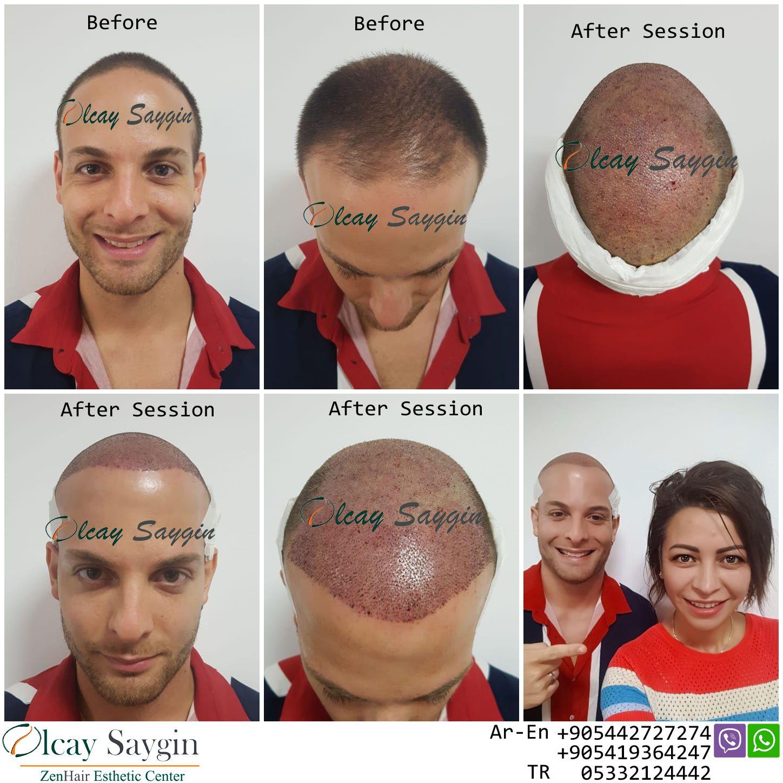 hair transplant uk , hair transplant turkey, olcay saygin
