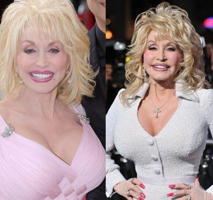 parton implants Dolly breast