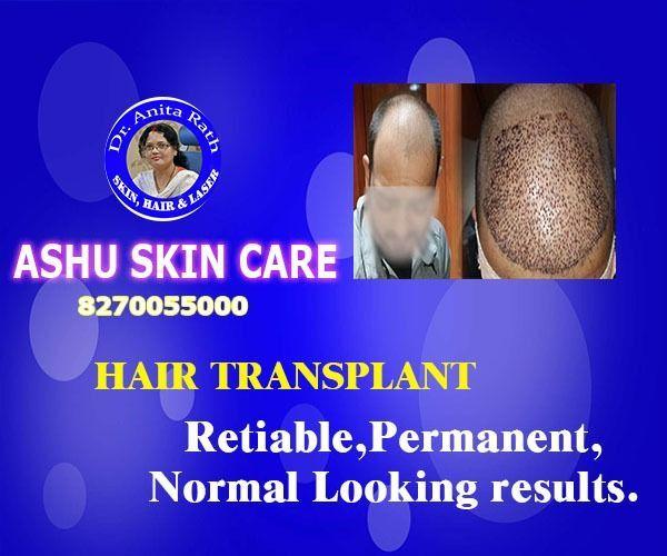 Ashu de Soins de la Peau - le Meilleur de la Restauration de Cheveux clinique à Bhubaneswar, Odisha, Inde #Ashu #Bhubaneswar #cheveux #Clinique #hair transplant results #Inde #Meilleur #Odisha #peau #Restauration #Soins