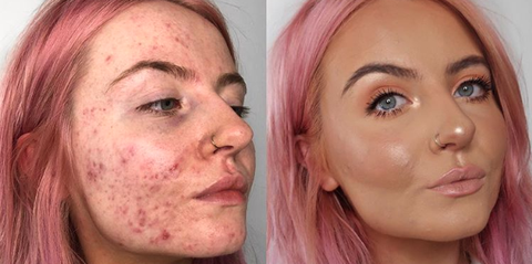 This Foundation Is Going Viral After Cystic Acne Sufferer Shares Her Insane Before And After Pics Acne Makeup Cystic Acne Acne Foundation