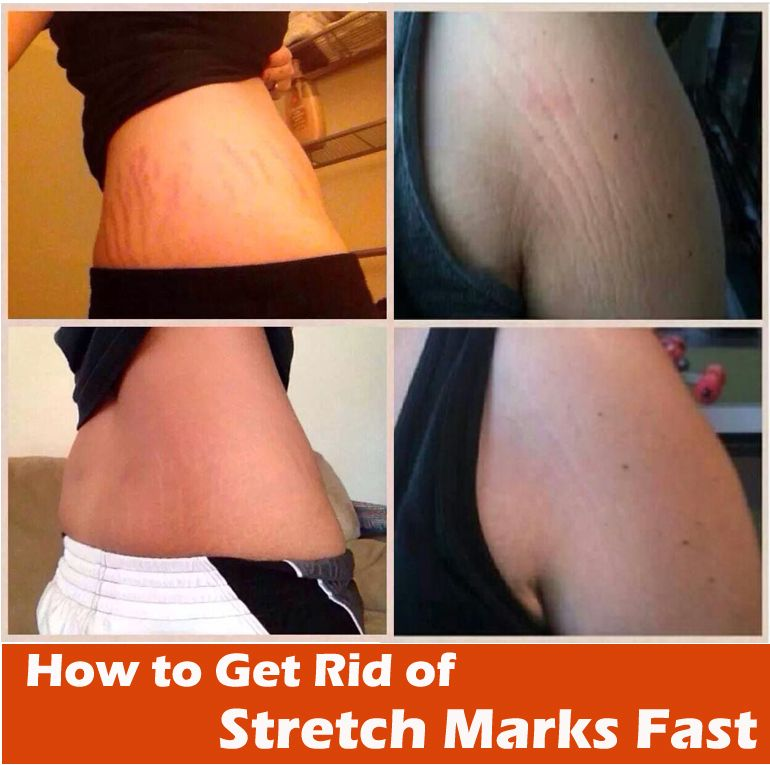 How To Get Rid Of Stretch Marks Fast Stretch Marks Beauty Hacks
