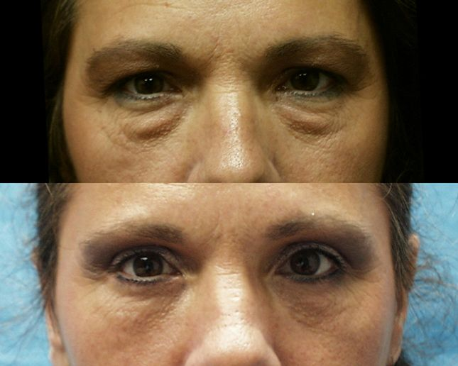 Dr. Ralph Garramone, Blapharoplasty eye lid cosmetic surgery before and after photo: Before/ After Gallery