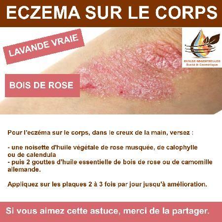 huile vegetale pour eczema