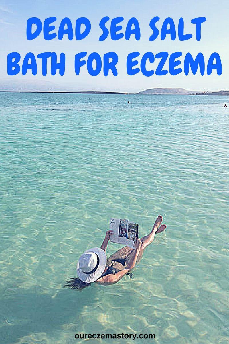 Our Eczema Story Rated 2 Eczema Blog Stop Itching Start Living Dead Sea Salt Bath Dead Sea Salt Bath Salts Essential Oils