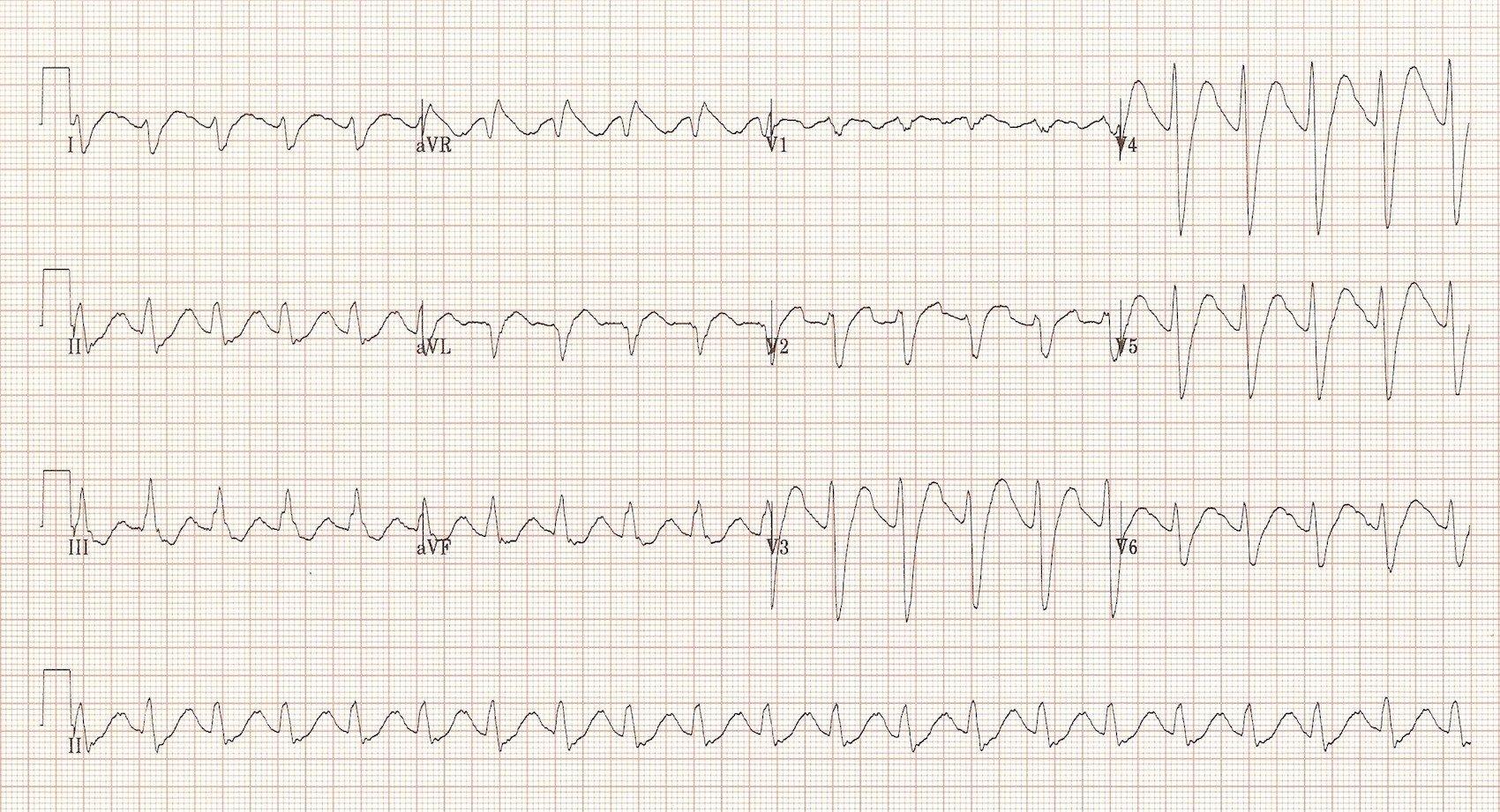 Quiz ecg 004 ekg ecg imaging pinterest seizures and 20 years quiz ecg 004 xflitez Choice Image