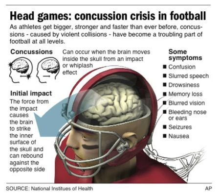 Background Info On Concussions Nfl Players Brain Diseases