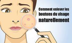 f0e53294e2bf Comment enlever les boutons du visage naturellement  santestyle  sante   health  beauté