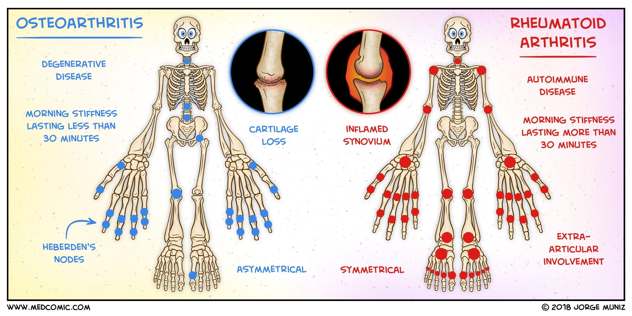 Osteoarthritis Vs Rheumatoid Arthritis Medcomic