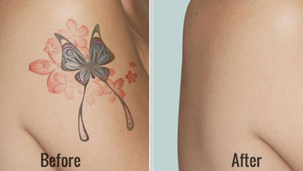 How to remove tattoos at home fast – 28 natural ways | Quote noted ...