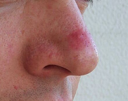 Nose acne cyst Acne cyst nose are painful, pus filled bumps