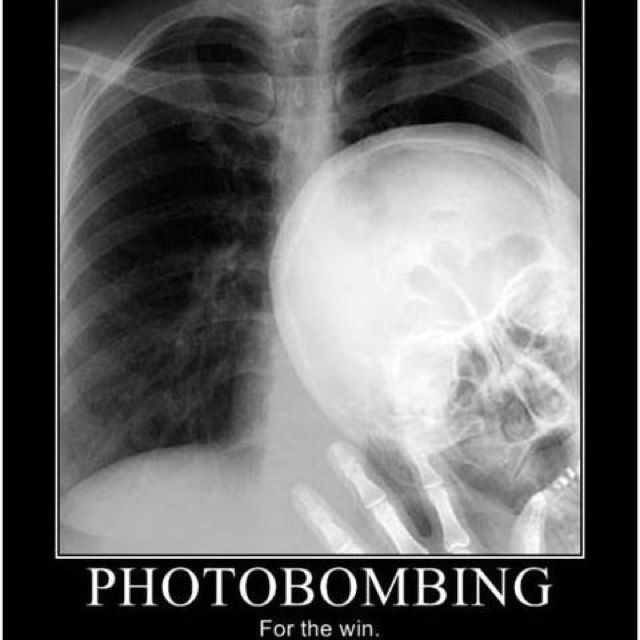 Funny Xray Meme : X ray humor memoirs of a rad tech therapy student