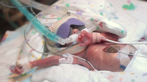 This Touching Video Of A Premature Baby\u0027s First Year Will Make You