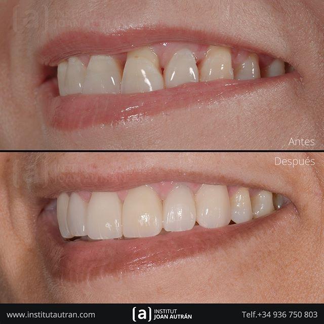 Devolviendo Sonrisas Naturales Con El Tratamiento De Carillas Sin Tallado Top Smile Con El Máximo Respeto Estetica Dental Carillas Dentales Diseños De Sonrisa