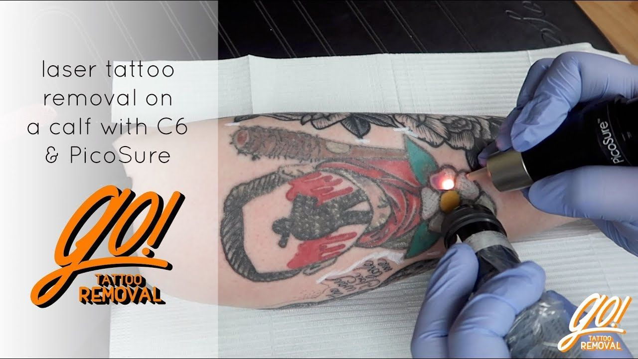 Laser tattoo removal with c6 picosure laser tattoo