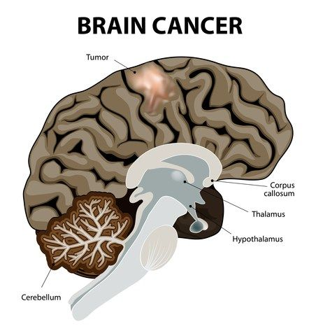 The Basics on Brain Tumors | Health and Fitness Tips.html