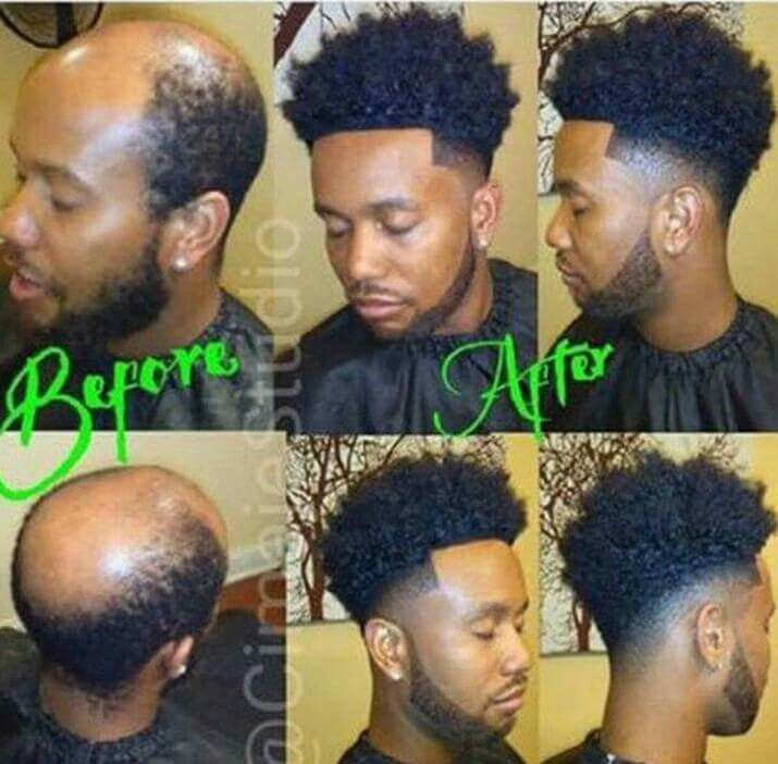 Lace Fronts For Men No One Has To Be Bald Any More Lol Hair Replacement For Men Man Weave Hair Replacement
