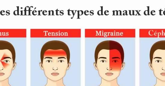 Les maux de tête (céphalées) sont des douleurs très courantes ...