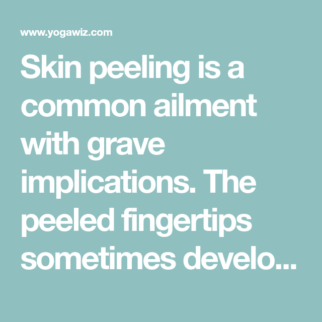 Skin Peeling Is A Common Ailment With Grave Implications