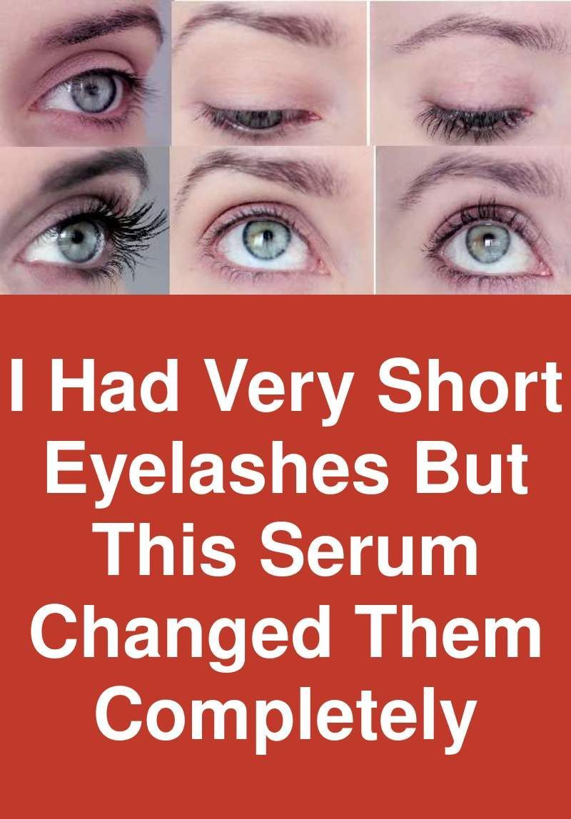 I Had Very Short Eyelashes But This Serum Changed Them Completely