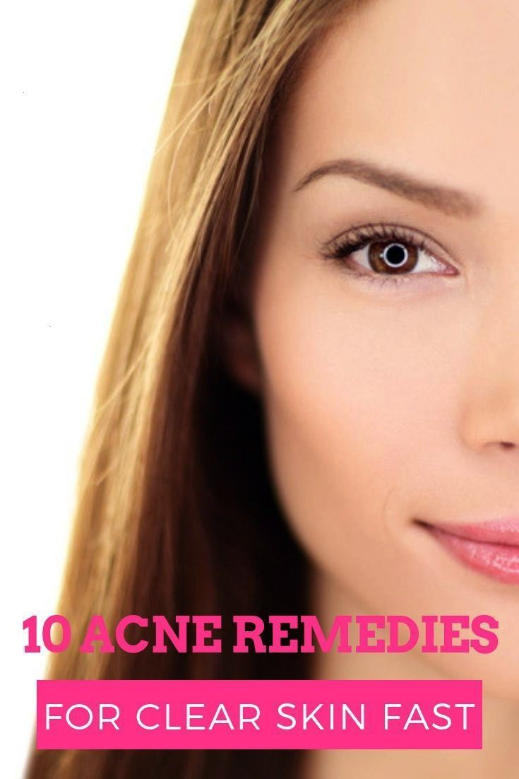 Acne Remedies Looking for fastacting overnight acne treatments to get rid of pimples and cystic acne These 10 DIY homemade acne remedies work fast for teens and adults su...