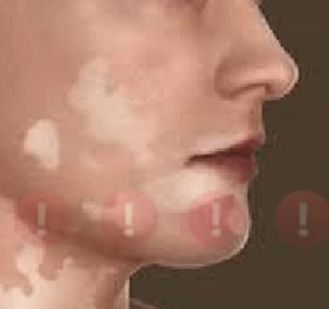 Spots hindi treatment at face white on home in How To
