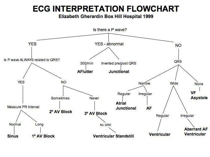 Ecg interpretation flow chart perfect for critical care nursing ecg interpretation flow chart perfect for critical care ccuart Choice Image