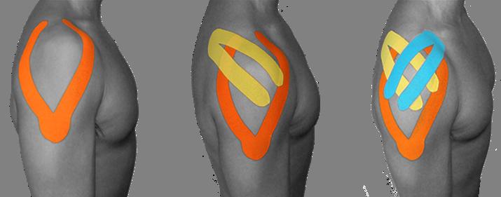 Resultado de imagen para aplicacion de kinesiotape para dolor de hombro