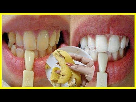 Em Apenas 2 Minutos Veja Seus Dentes Amarelos Ficarem Brancos