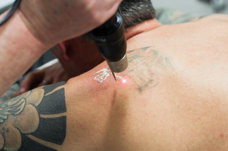 Does tattoo removal hurt tattoos laser tattoo removal