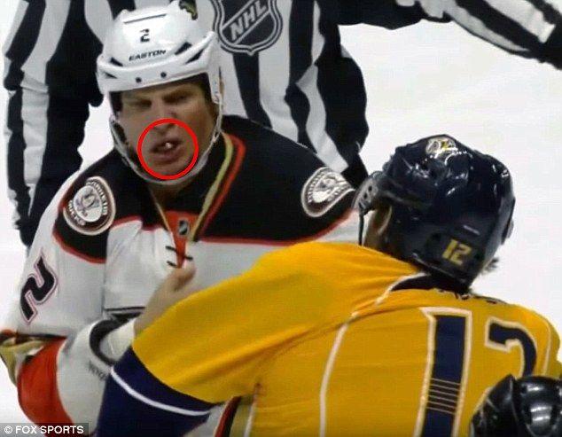 Carrie Underwood S Hockey Hubby Husband Knocks Teeth From Rival Carrie Underwood Hockey Hubby