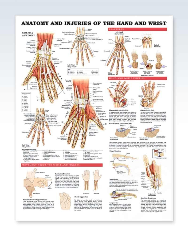 28+ Anatomy and Injuries of the Hand and Wrist Chart 20x26