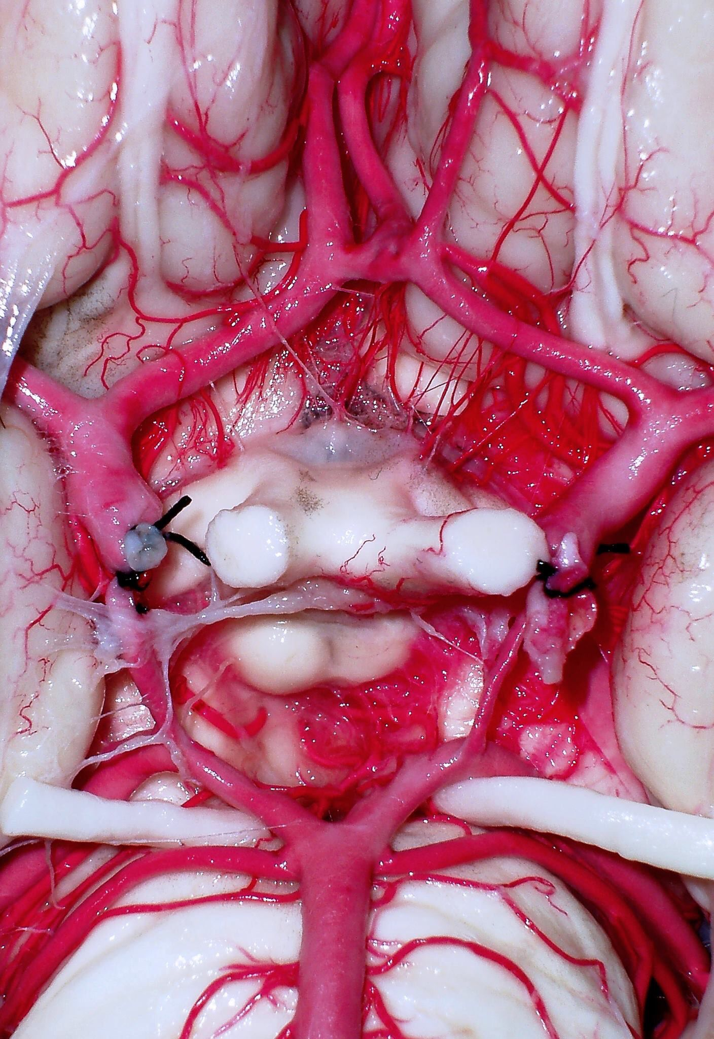 A magnificent view of Circle of Willis | Brain and Head transplant ...