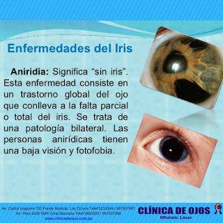 Clinica De Ojos Oftalmic Laser Enfermedades Del Iris Aniridia Optometry Lockscreen