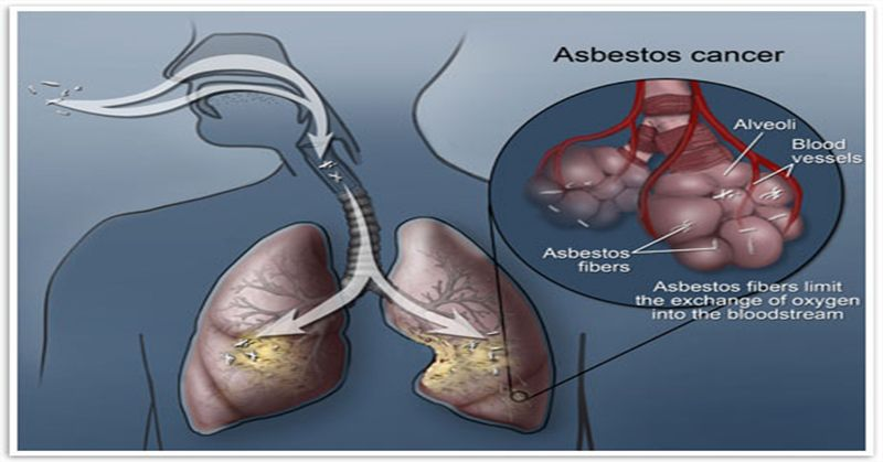 Asbestos Fibers In Lungs : In this article we will share with you a special soup recipe which