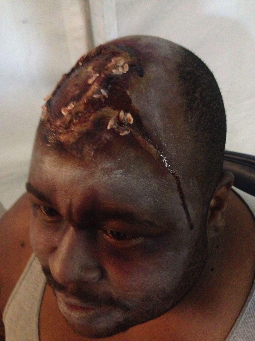 Rotting wound/maggot infestation makeup. MUA: Becki Morgan #halloween  #gross #rottingflesh #maggots