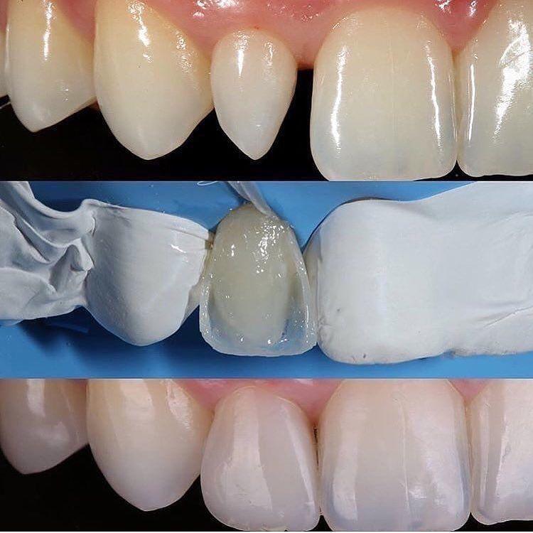 Dental Assistant Jobs Near Me 2020 Dental Dental Assistant Teeth Treatment