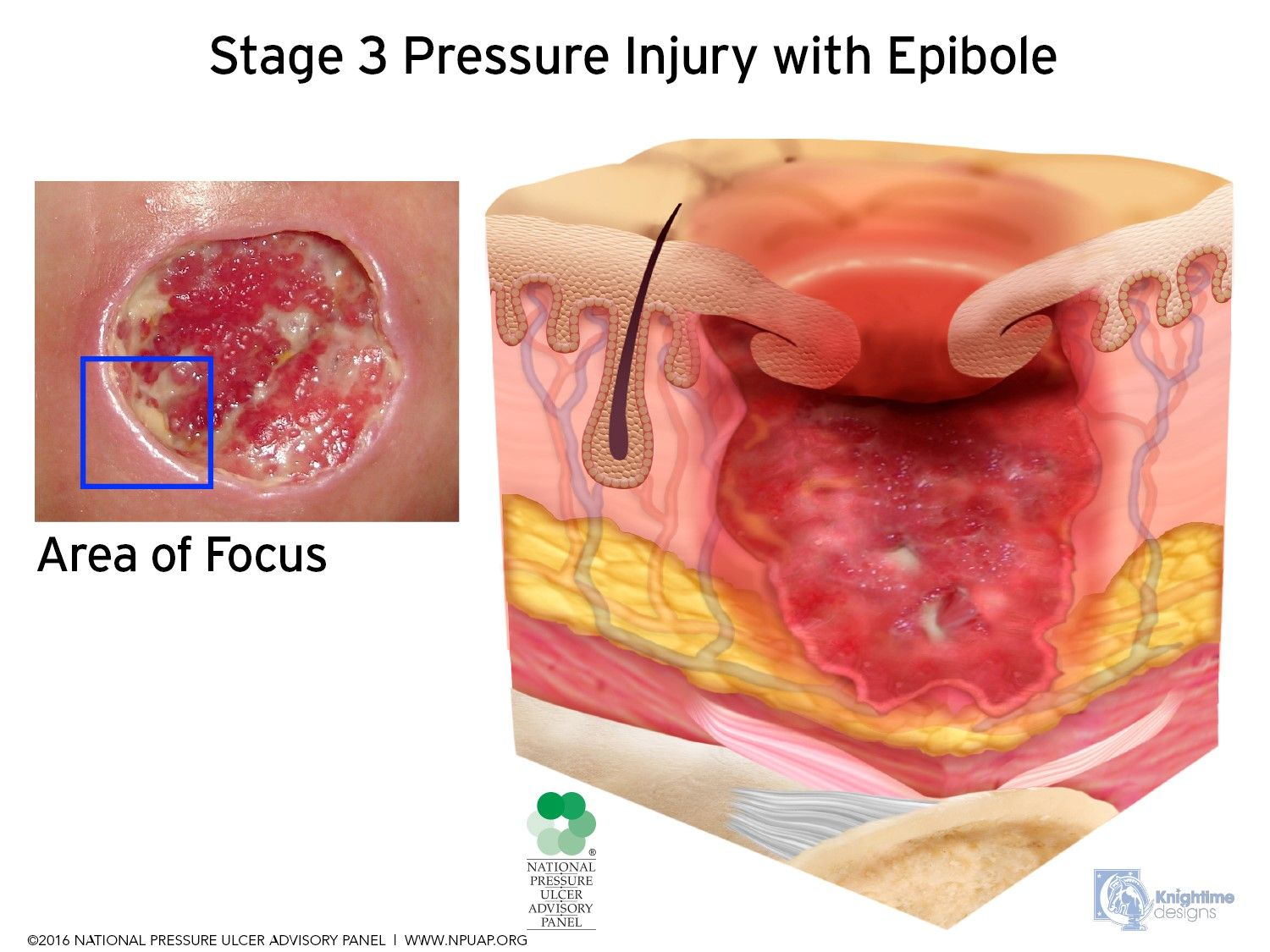 Grade three pressure sore