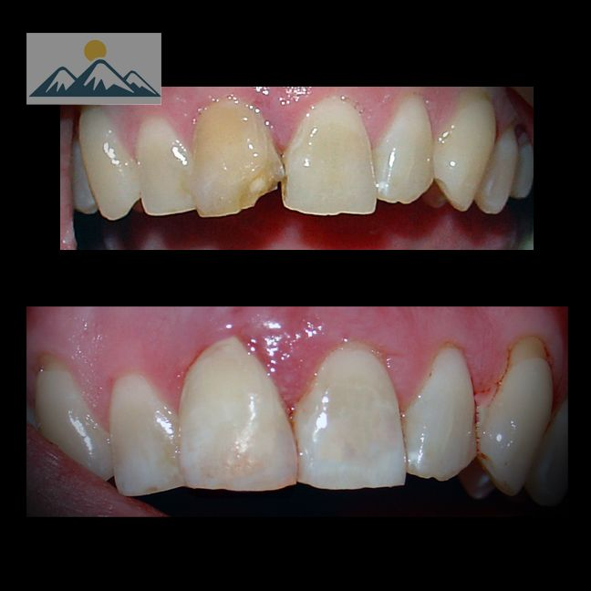 Brown, broken tooth fixed with internal bleaching and composite