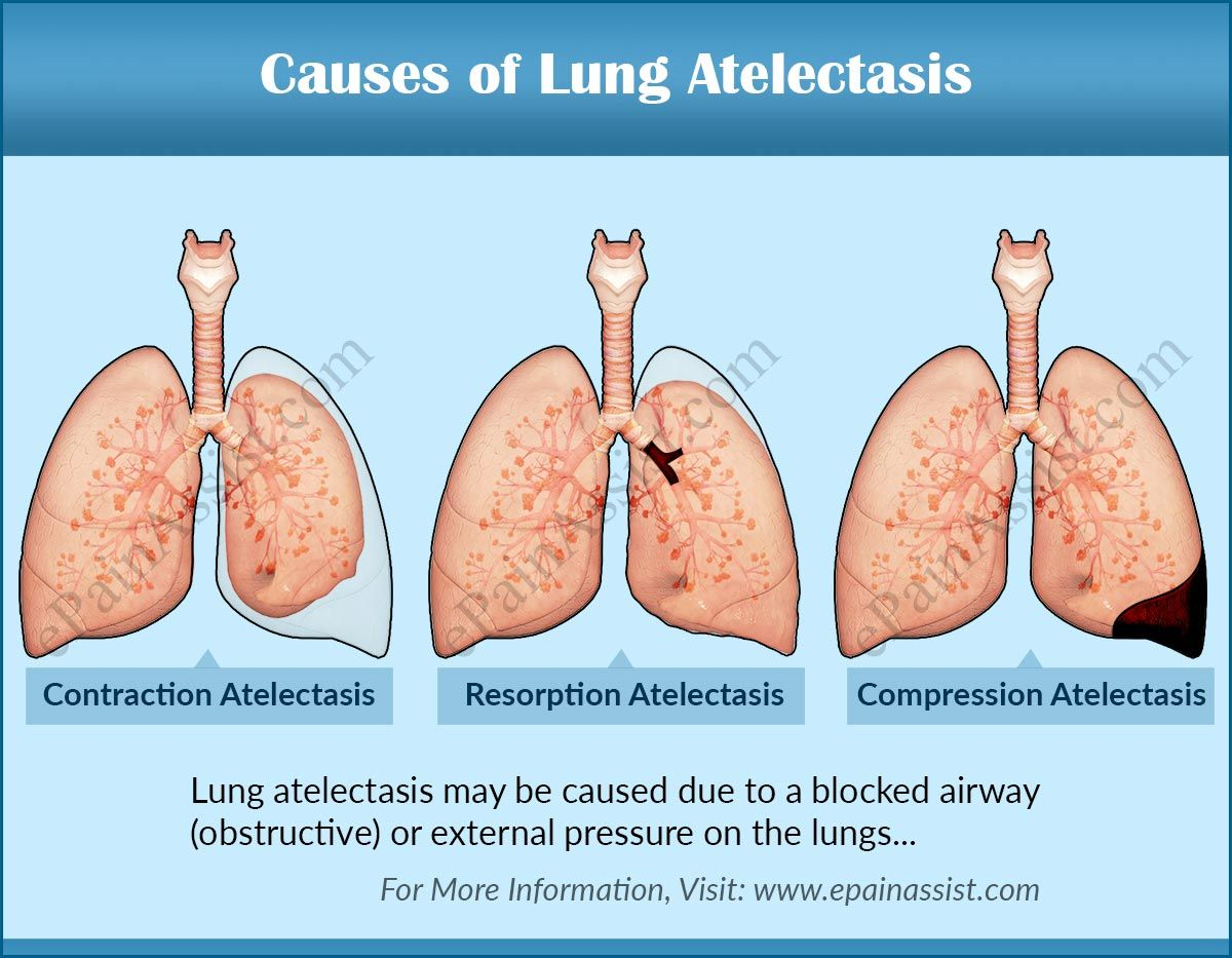 Image Result For Lung Atelectasis