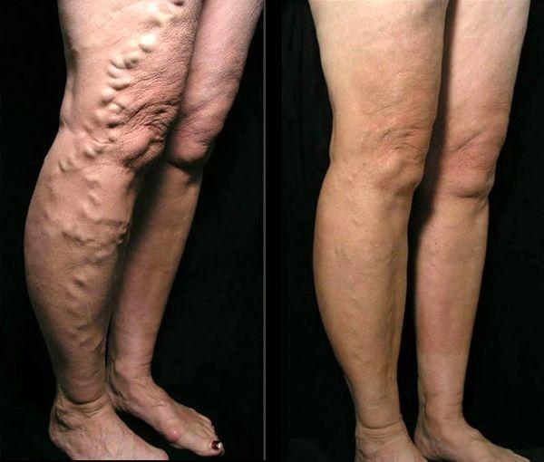varices behandeling