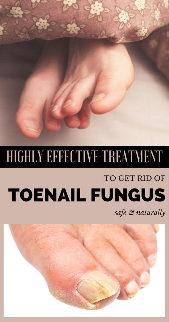 Nail fungus affects around 10% of the U.S. population (around 35 ...