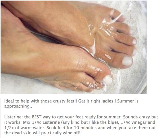 57cd296e4f748eb3942418e713f1797d - How To Get Dead Skin Off Your Feet Home Remedies