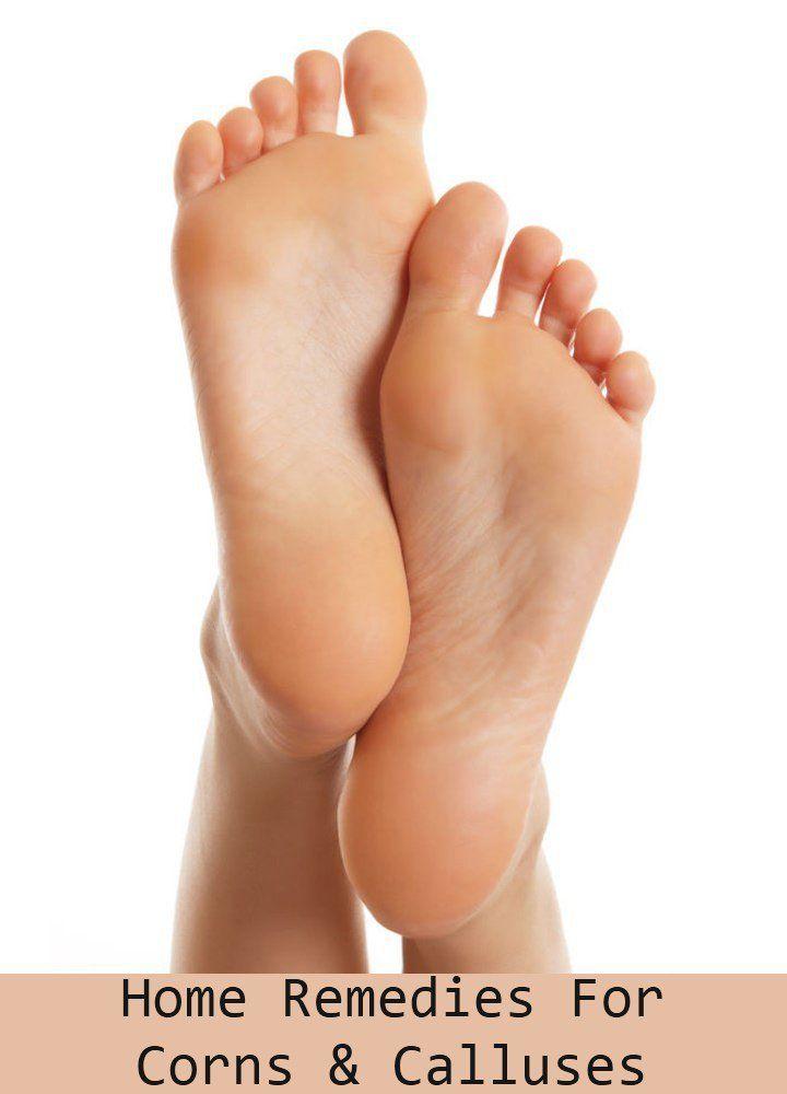 57cde56e4119d33c98317593ac81e218 - How To Get Rid Of Callus On Toes Permanently